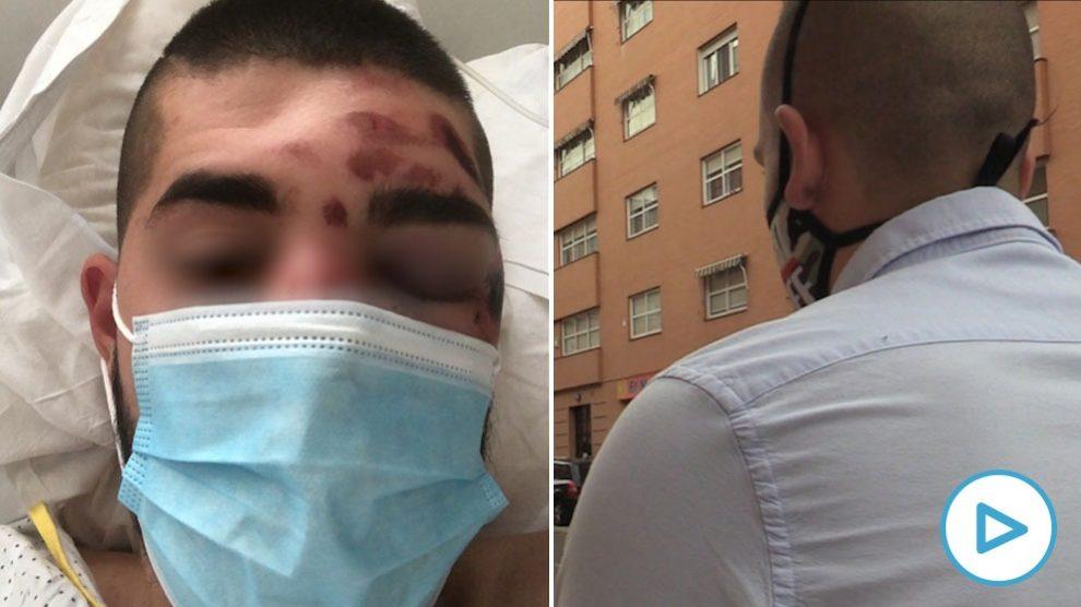 Uno de los jóvenes agredidos por los menas en San Blas: «Pensé que había perdido a mi amigo»