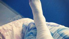 Huesos: Esguince en dedos de los pies