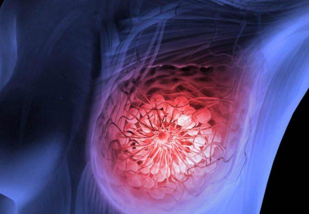 Autoprueba cáncer de mama