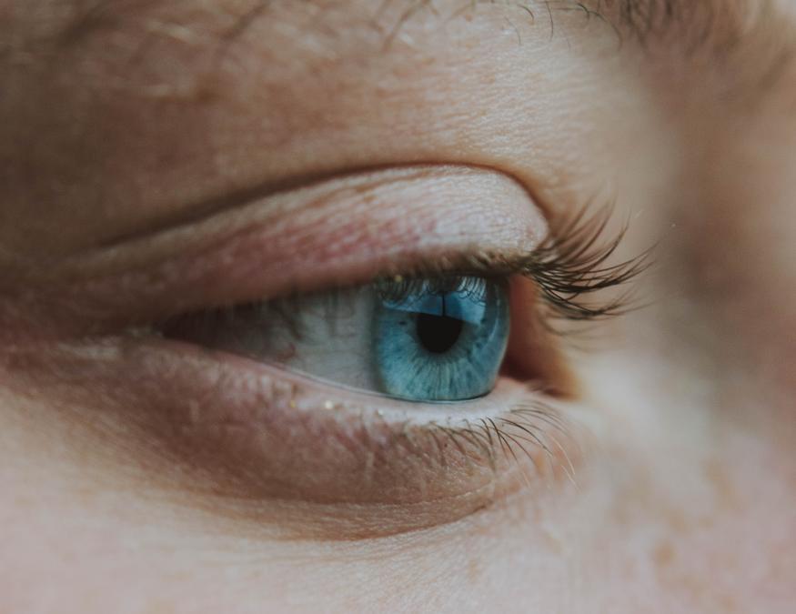 Ojos, párpados y manchas en la piel