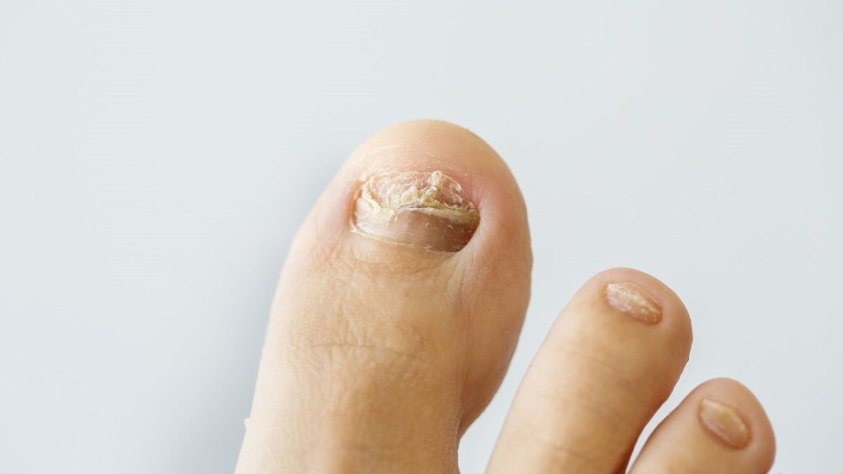 Los hongos pueden ser muy perjudiciales para las uñas