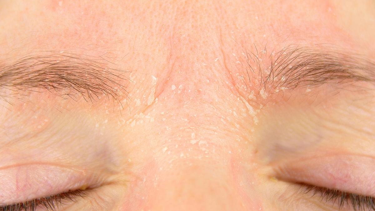 La caspa es muy antiestética, especialmente en las cejas