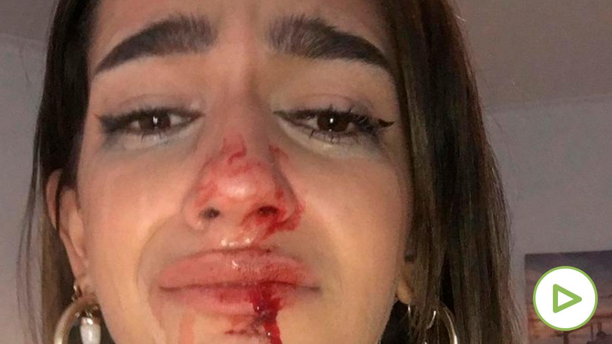Brutal agresión a una adolescente transexual en Barcelona cuando salía de su casa.