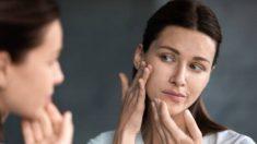 Descubre las causas del acné en el embarazo y cómo tratar