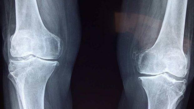 Lesión rodilla