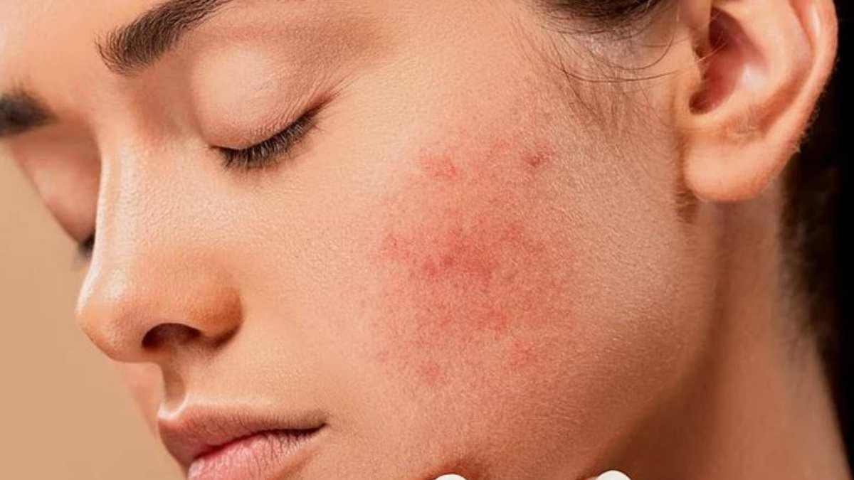 ¿Qué es el acné y por qué aparece?
