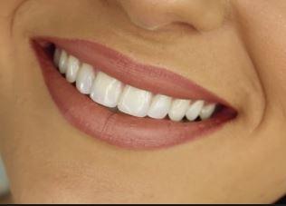 ¿Cuáles son los tratamientos dentales más demandados de 2020?
