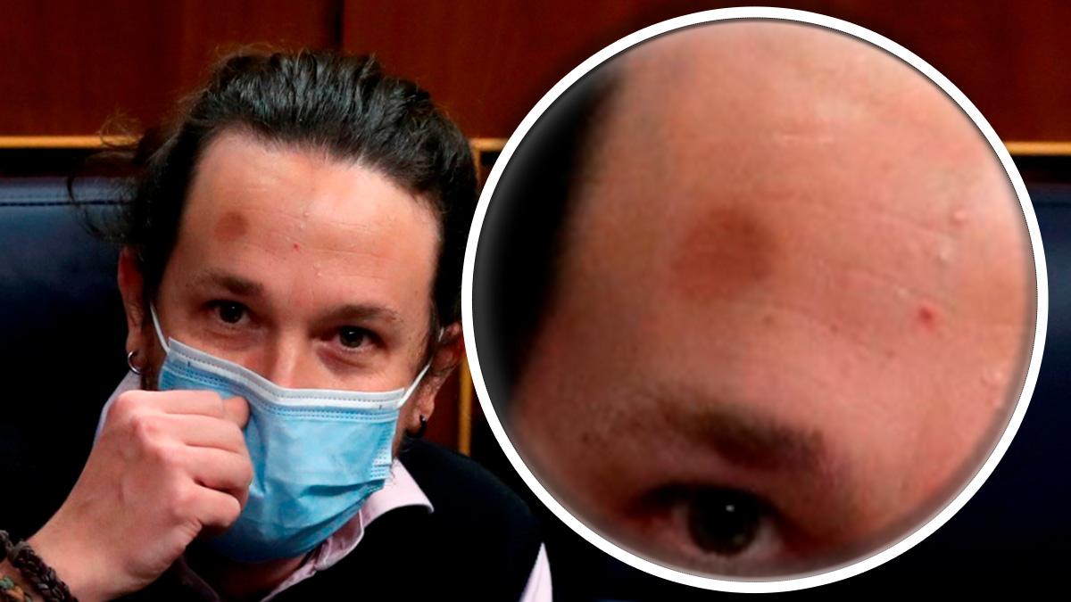 Pablo Iglesias, ayer en el Congreso, con un detalle del hematoma que luce en la frente