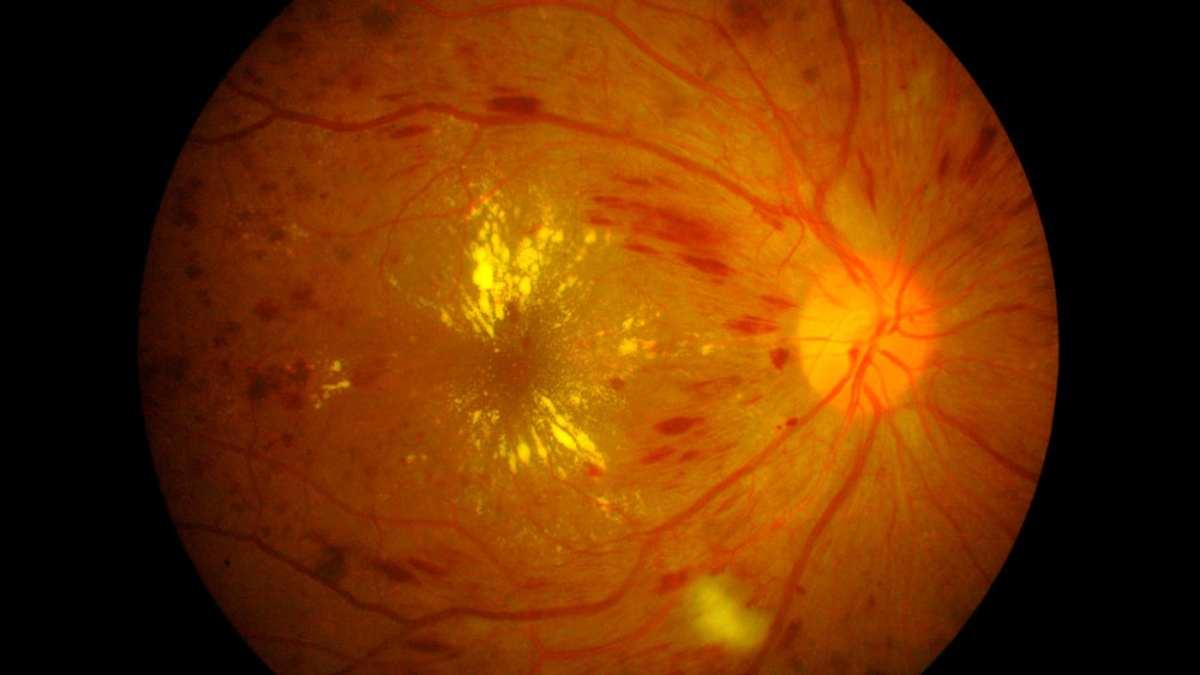 Enfermedades en ojos, edema macular