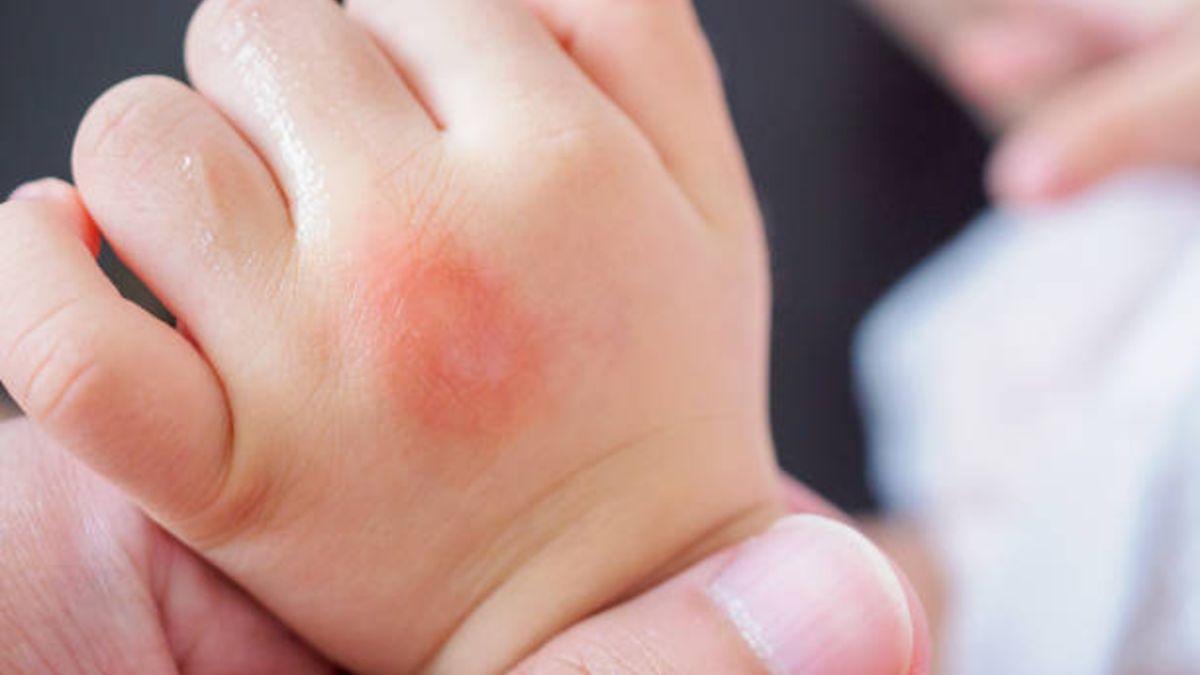Descubre la causa de la urticaria en niños y cómo se debe tratar