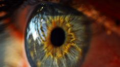 Glaucoma @Istock