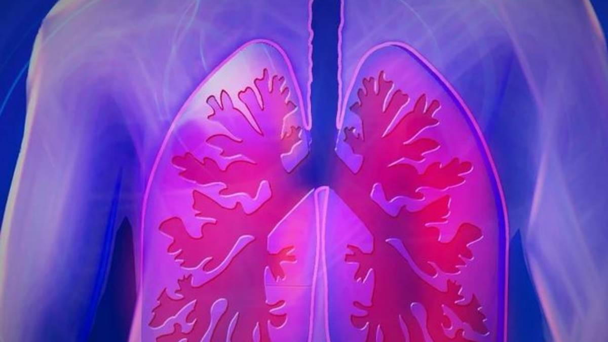 Pulmonar. @Istock