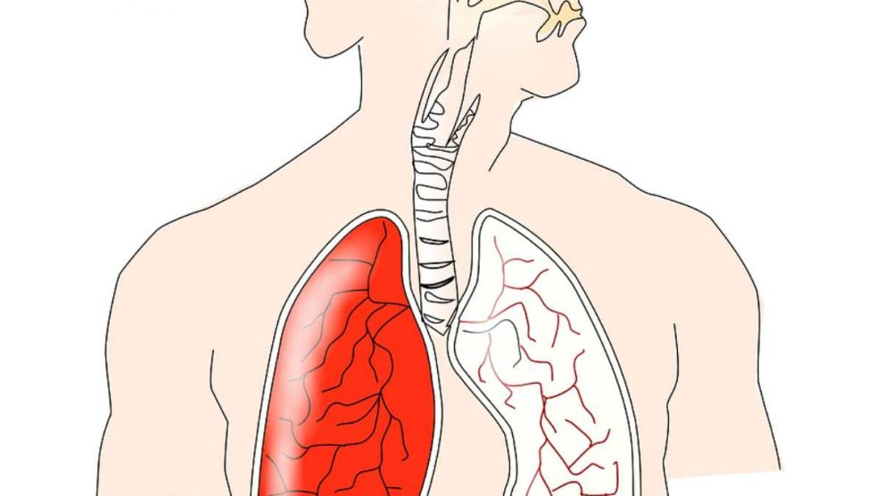¿Qué la distonía muscular, la enfermedad vocal que sufre Jordi Roca?