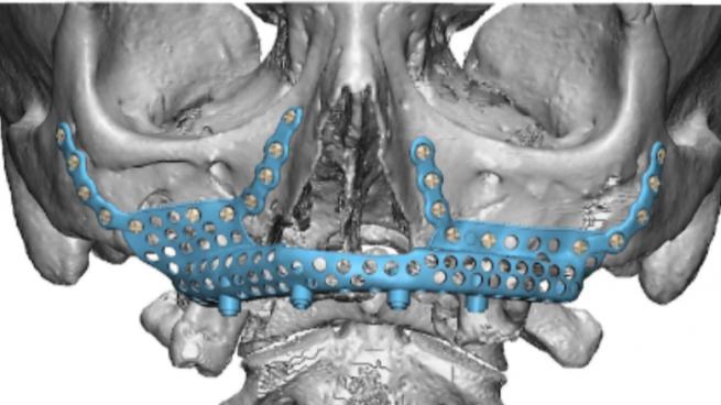 Prótesis de titanio: una de las soluciones más eficaces para reconstruir la atrofia maxilar