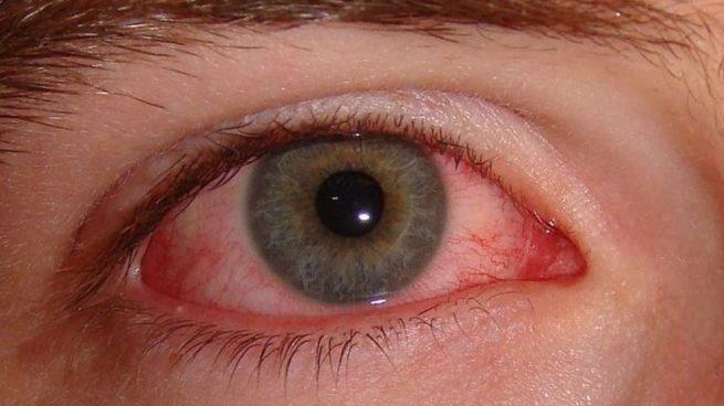 Conoce el tipo de alergia primaveral que sufres