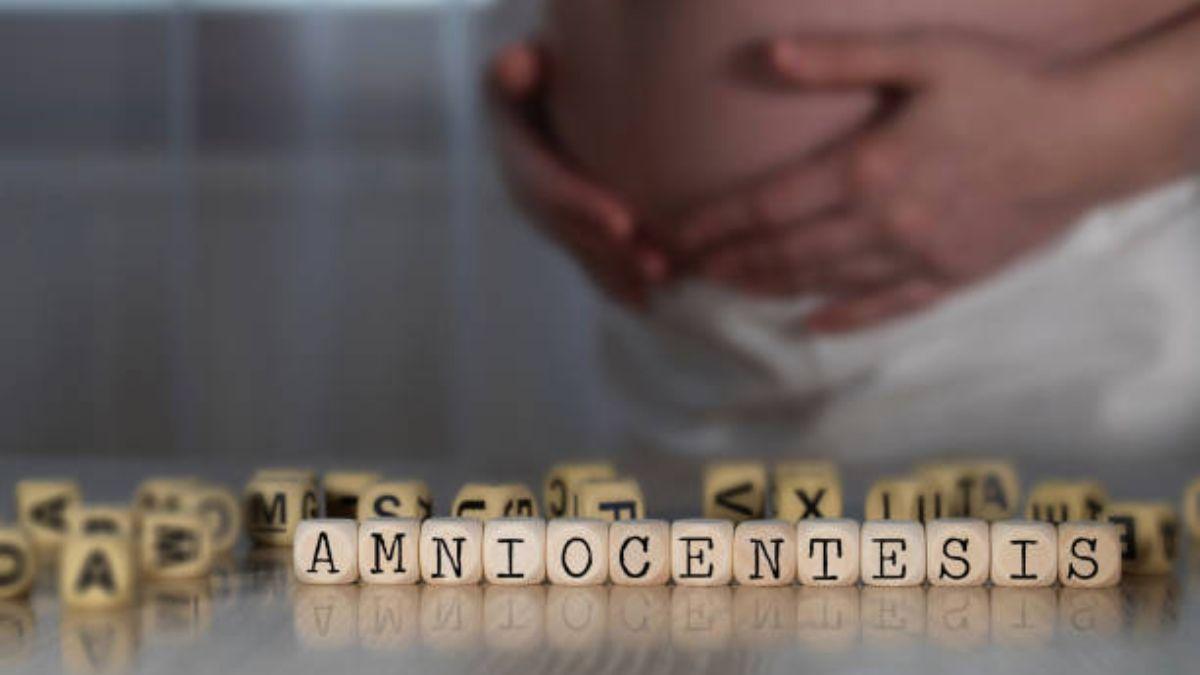 Todo lo que debes saber sobre la prueba de la amniocentesis
