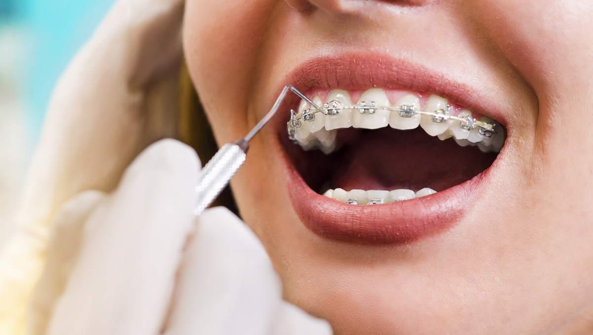 Pros y contras de las bandas de ortodoncia