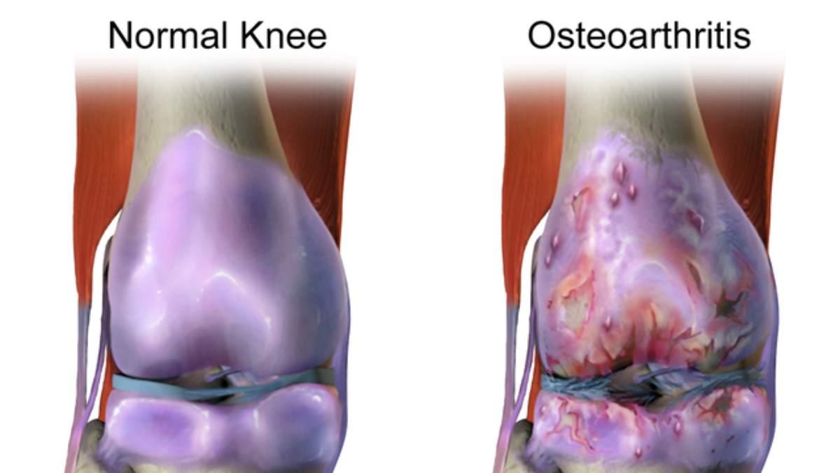 Alimentos contra la osteoartritis