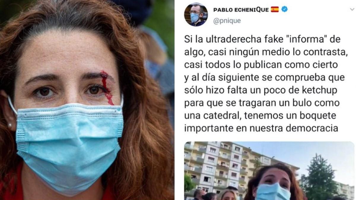 La herida que le causó la pedrada a Rocío de Meer durante un mitin de Vox por las elecciones en el País Vasco.