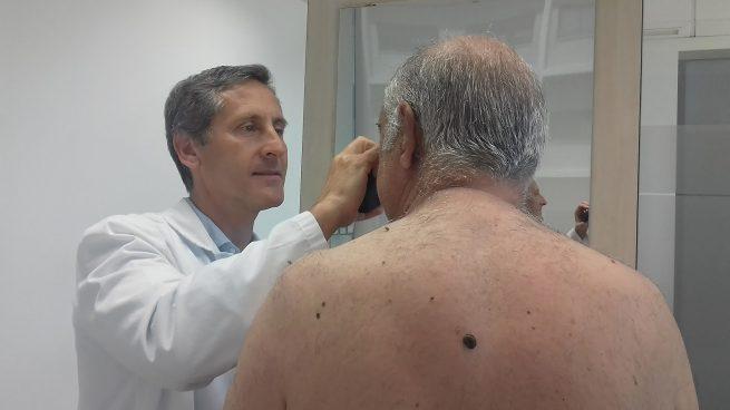 Más del 90% de los cánceres de piel se pueden prevenir con fotoprotección, autoexploración y revisión especializada