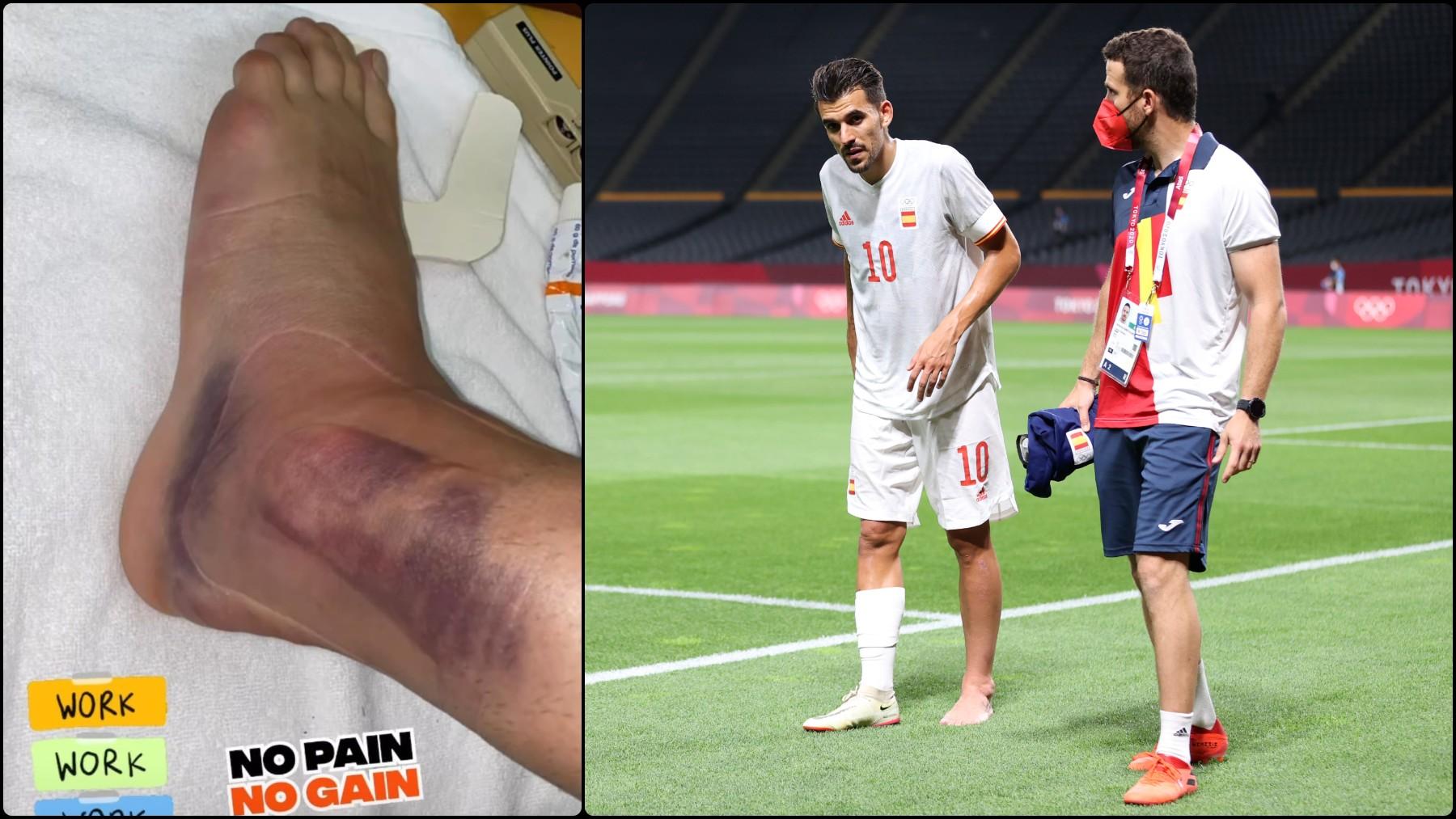 Así está el tobillo de Ceballos un día después del partido ante Egipto.