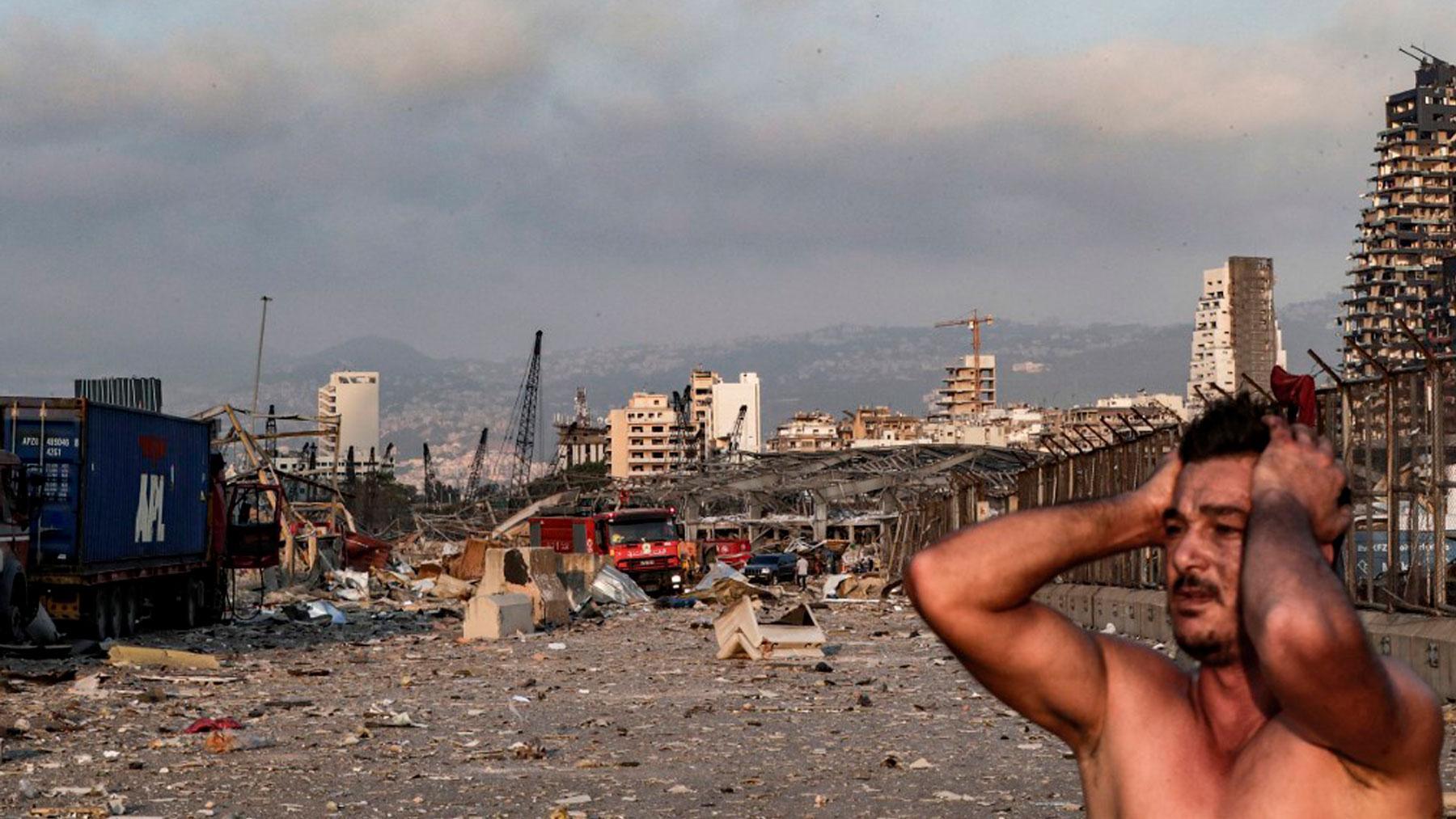 Un hombre se lleva las manos a la cabeza ante la devastación provocada por la explosión en el puerto de Beirut, Líbano. Foto: AFP