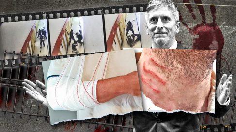 Imágenes del vídeo filtrado por Interior y las lesiones de los funcionarios que redujeron al preso de Villena.