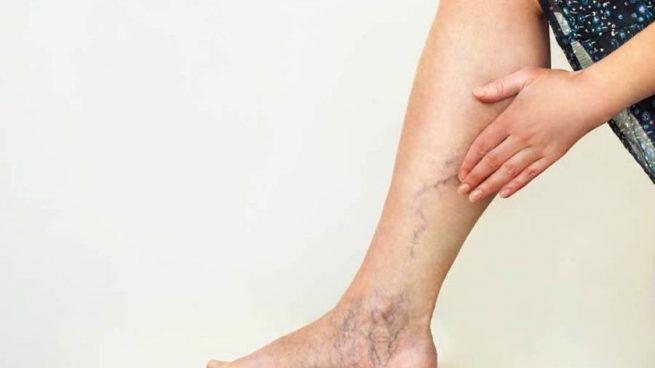 Las varices en las piernas: un problema al que prestar atención más allá de la estética