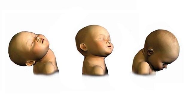 """El síndrome del """"bebé sacudido"""""""