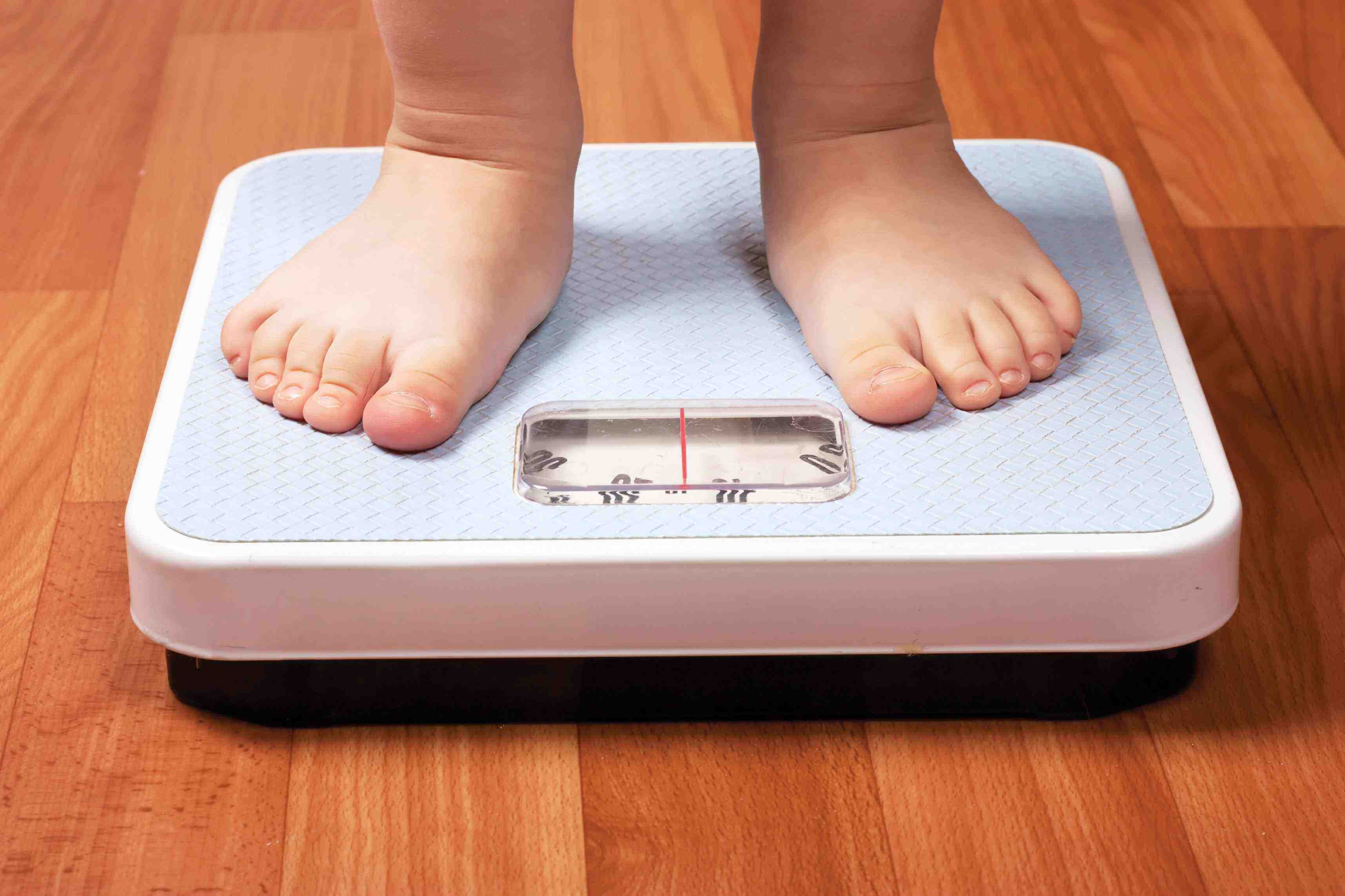 obesidad-infantil