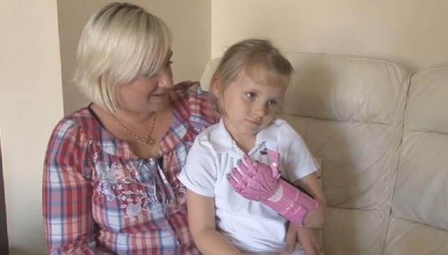 Una niña de 3 años tiene mano gracias a una impresora 3D