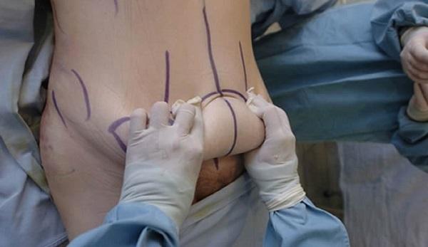 operacion-2