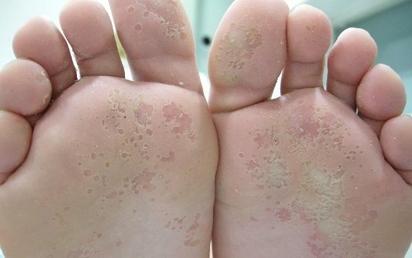 infeccion en la planta del pie