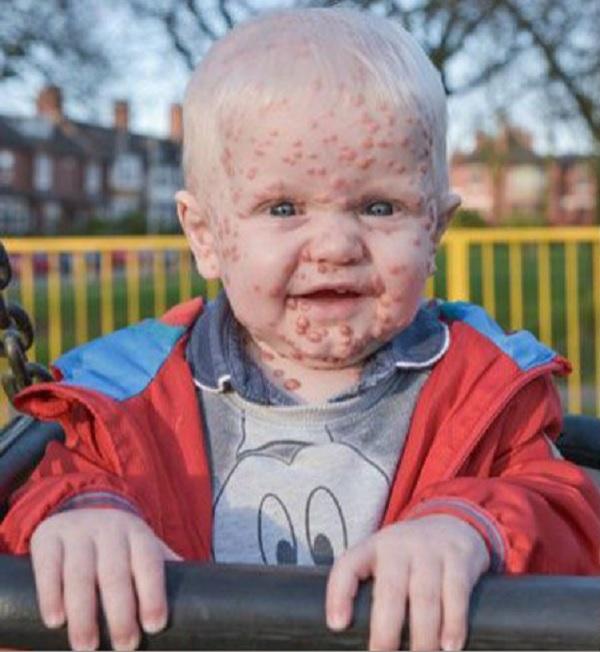 Oscar, el bebé de diez meses que siente el rechazo diario de todo el mundo