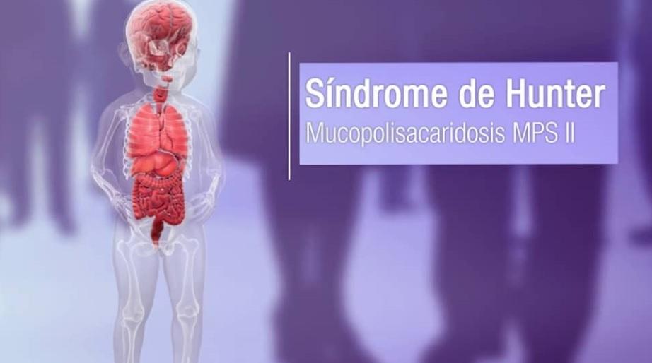 Mucopolisacaridosis, enfermedades raras de bebé