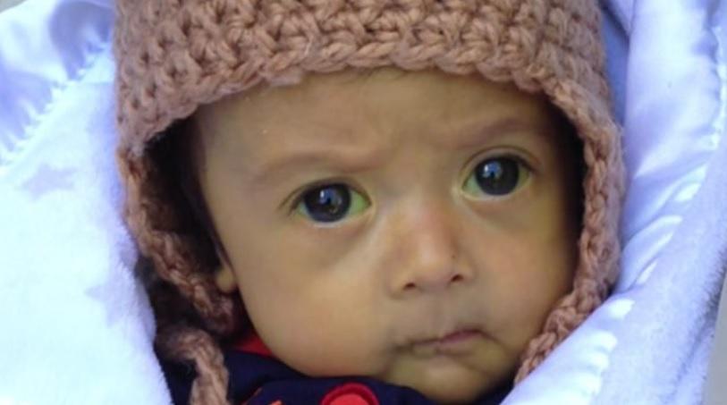 bebe-trasplante