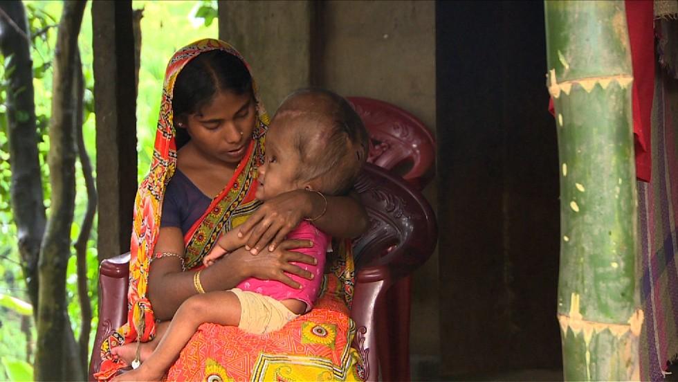 Fallece la niña que sufría hidrocefalia