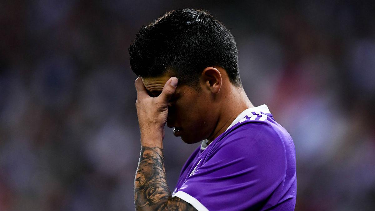 James Rodríguez se lleva la mano a la cara. (Getty)