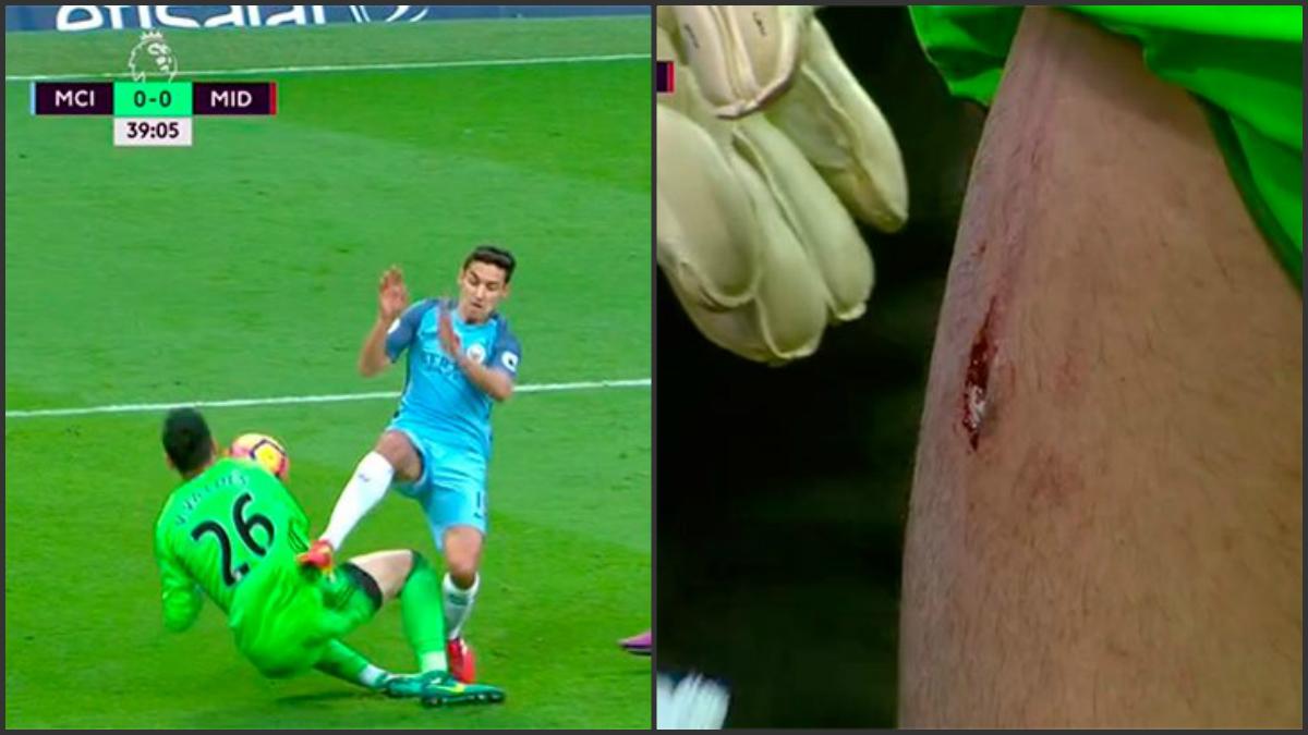 Jesús Navas agujereó la pierna a Valdés tras una entrada.