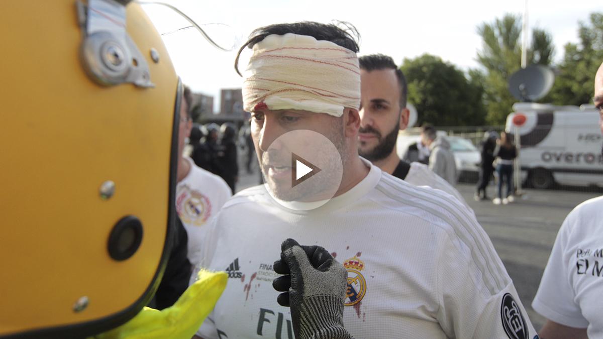 El aficionado madridista, agredido por la afición del Atlético habló con OKDIARIO (Foto: Francisco Toledo)