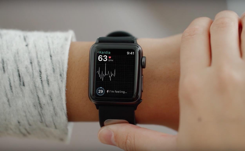 En sólo 30 segundos, la pulsera KardiaBand te dirá si tu ritmo cardiaco es normal o si puedes estar sufriendo una fibrilación atrial