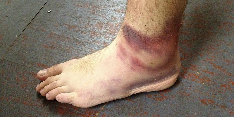 Cómo curar los esguinces de tobillo