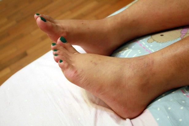 dieta para la diabetes con hinchazón del pie derecho