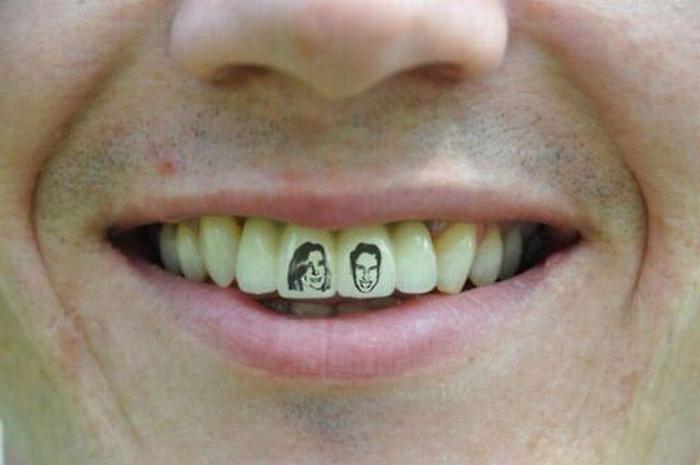Los peligros para la salud de los adornos en la boca