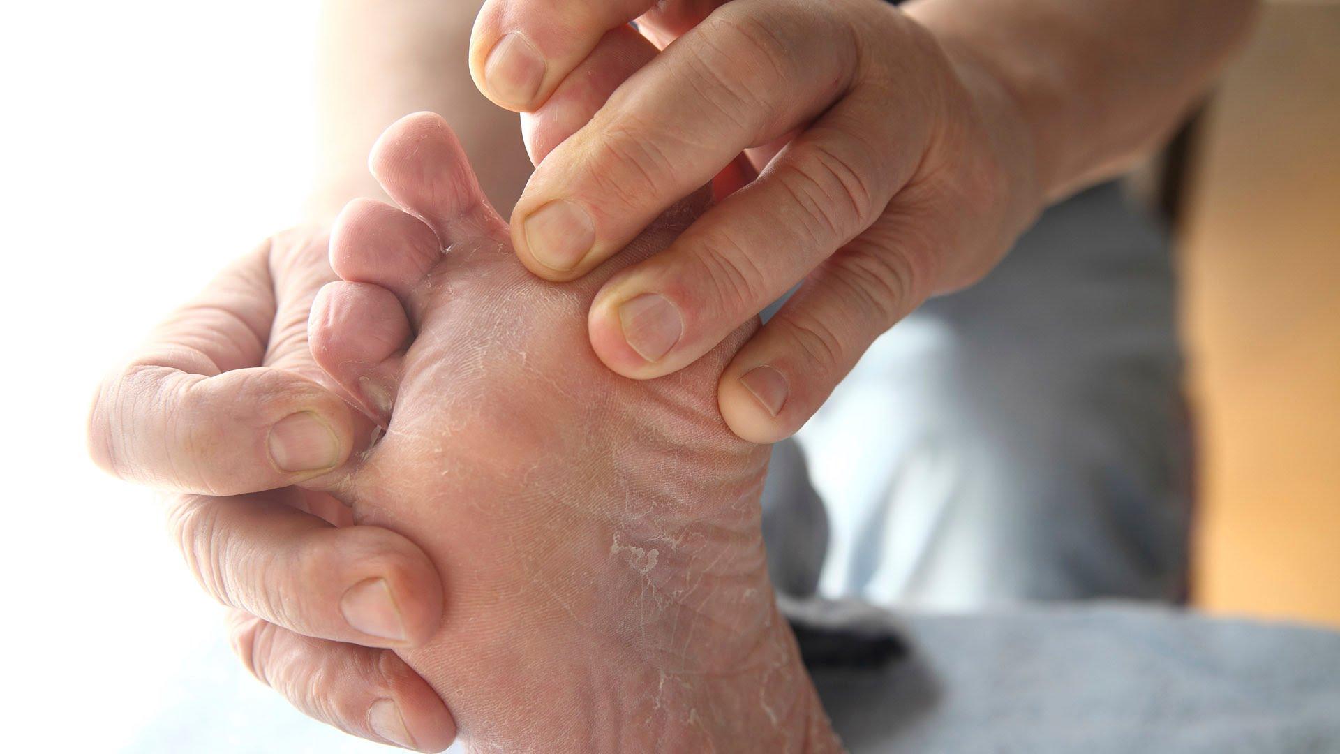 como eliminar el olor de pies con remedios caseros