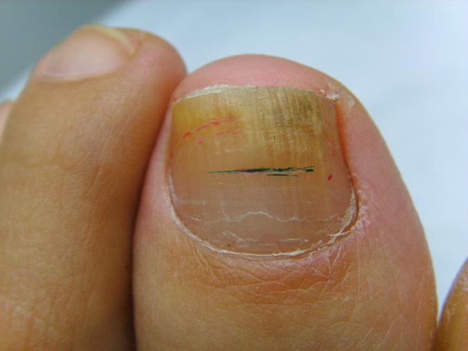 Remedio natural para el tratamiento de la micosis en las uñas