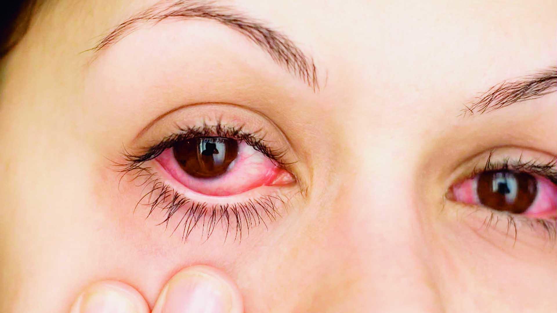 Remedios naturales para quitar el rojo del ojo