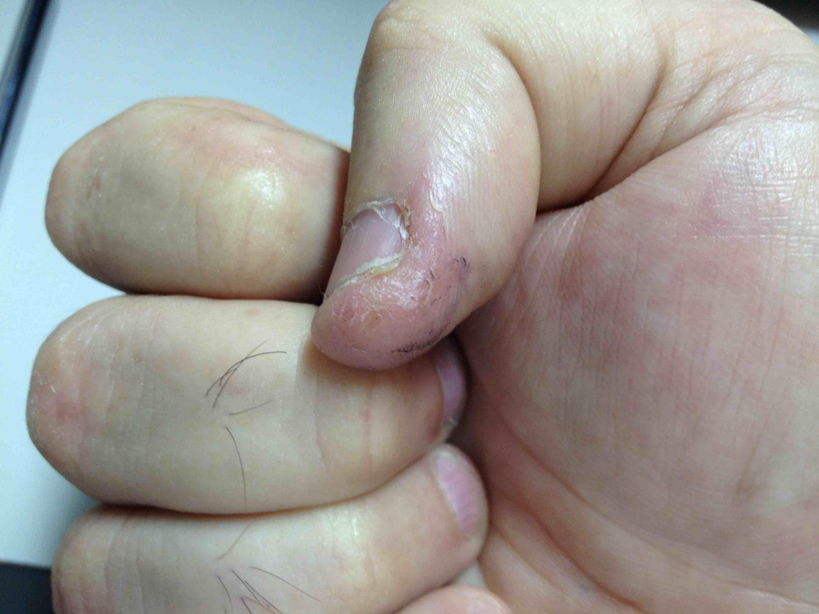 Tratamiento Para Los Hongos En Los Dedos De Las Manos