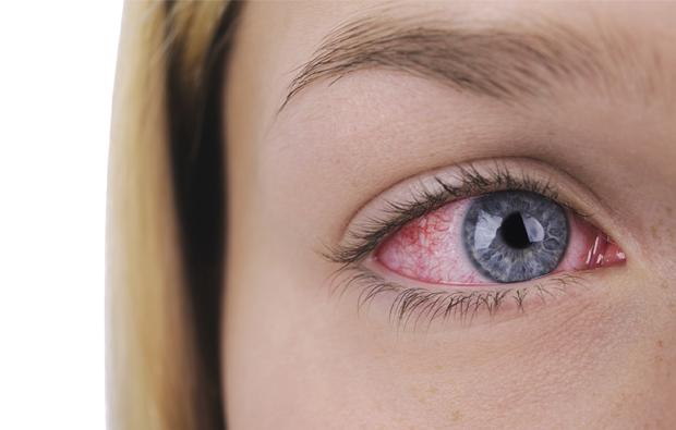 puedes piojos en tus ojos