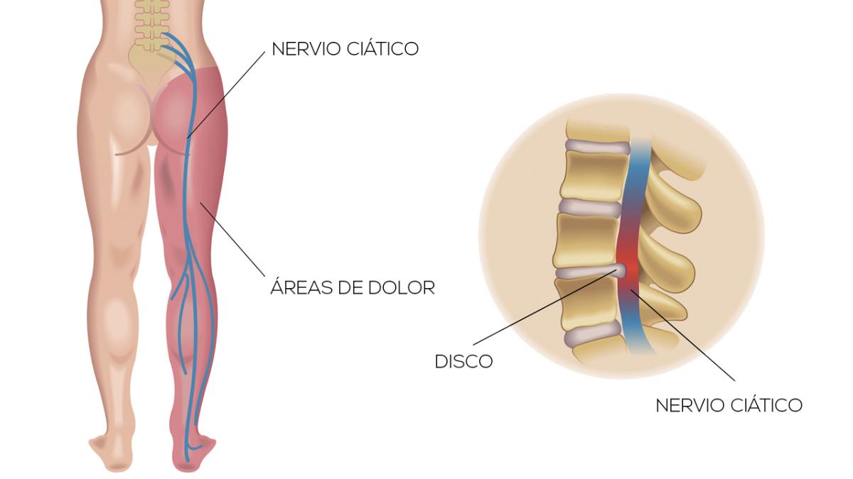 Ciática: lesiones